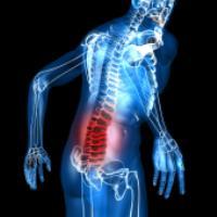 درباره کمر دردِ بعد از جراحی کمر