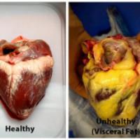 اثرات چربی خون بر قلب