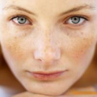 رژیم غذایی برای رفع لک های پوستی و جوش صورت