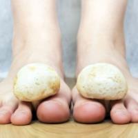 آیا شما هم از قارچ پوستی رنج می برید؟