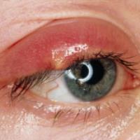 بیماری های پلک (1)