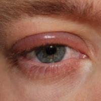 بیماری های پلک (2)