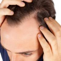 علت ريزش مو در آقايان (بخش دوم، آندروژنيک)
