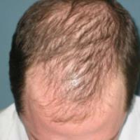 علت ریزش مو در آقایان  (بخش سوم، تروماتیک)
