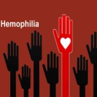 بیماری هموفیلی (2)