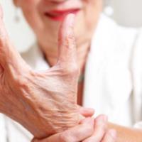 آیا آرتروز درمان دارد؟