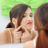 درمانی برای جوش صورت