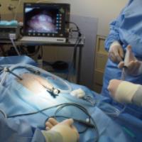 لاپاراسکوپي و عود کردن دوباره کيست تخمدان