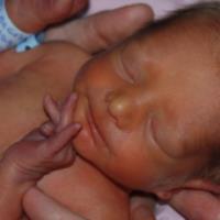 فنوباربیتال برای زردی نوزاد، مفید یا مضر؟