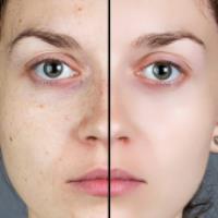 از بین بردن لکه های پوستی (طب سنتی)