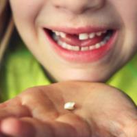 جا انداختن دندانِ از ریشه درآمده کودک
