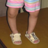 نرمی استخوان در کودکان (1)