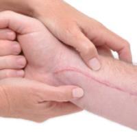 چرا جای زخم ها بر روی پوست باقی می مانند؟