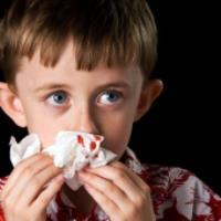 علت اصلی خون ریزی از بینی در کودکان!