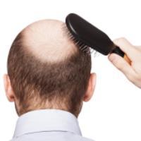 راهکار خانگی برای درمان ریزش مو و طاسی - بخش دوم