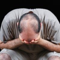 راهکار خانگی برای درمان ریزش مو و طاسی - بخش اول