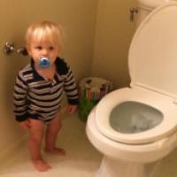 ریفلاکس ادراری در کودکان (1)