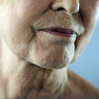 سرطان پوست چیست؟