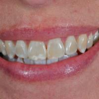 علت تغییر رنگ دندان ها چیست؟