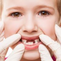 چرا دندان های کودکان می افتد؟