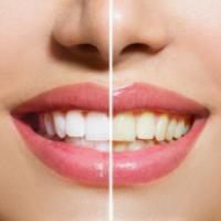 آیا مینای دندان با جرم گیری آسیب می بیند؟
