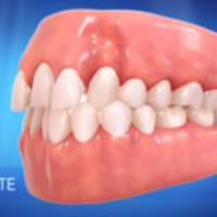 دندان های نامرتب و عوارض آن
