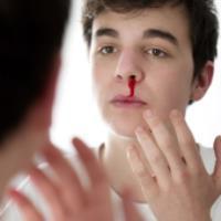 خون ریزی از بینی