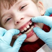 ارتودنسی پیشگیری برای کودکان چه کاربردی دارد؟